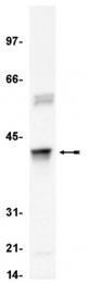AM32690PU-N - Apolipoprotein J / Apo J