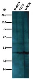 AM32710PU-N - NEUROD1