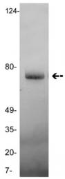 AM32719PU-N - Vitronectin