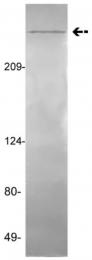AM32720PU-N - von Willebrand factor (VWF)