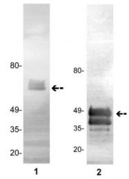 AM32721PU-N - Protein C / PROC