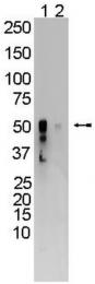 AM32731SU-N - CYP2B1