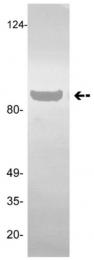 AM32783PU-N - Plasminogen / PLG