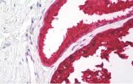 AM32794PU-N - Kallikrein-3 / PSA / KLK3