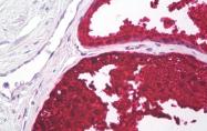 AM32795PU-N - Kallikrein-3 / PSA / KLK3