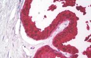 AM32796PU-N - Kallikrein-3 / PSA / KLK3