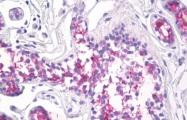 AM32800PU-N - CD227 / Mucin-1 / MUC1