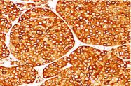AM32831PU-N - Tyrosinase (TYR)
