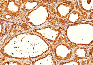 AM32841PU-T - Thyroglobulin