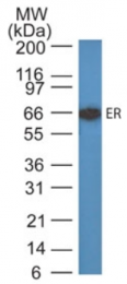 AM32844PU-N - Estrogen receptor alpha