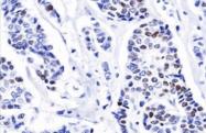 AM32855PU-T - Progesterone receptor