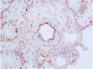 AM32958PU-N - CD46 / MCP