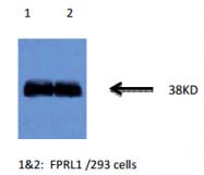 AM32959PU-N - FPR2 / FPRL1