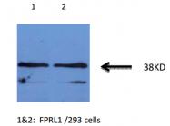 AM32960PU-N - FPR2 / FPRL1