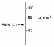 AM32993PU-N - Vimentin