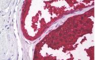 AM33042PU-N - Kallikrein-3 / PSA / KLK3