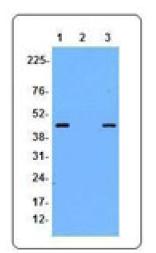 AM33072PU-N - Ficolin-2