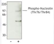 AM33092PU-S - Nucleolin