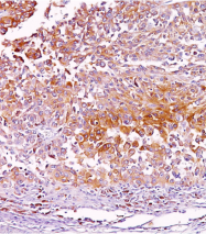 AM33121PU-T - Melanoma gp100