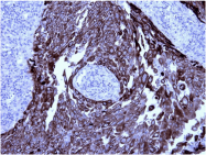 AM33199SU-N - Cytokeratin 5