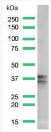 AM33222PU-S - Nucleophosmin
