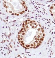 AM33229PU-S - Aurora kinase A/B/C