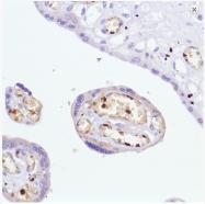 AM33232PU-S - Hemoglobin alpha