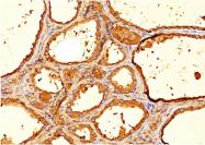 AM33262PU-T - Thyroglobulin