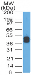 AM33271PU-N - acidic Cytokeratin
