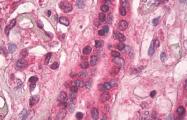 AM33396PU-N - Transglutaminase-1 (TGM1)