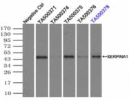 AM33397PU-N - Alpha-1-antitrypsin