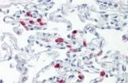 AM33402PU-N - CD289 / TLR9