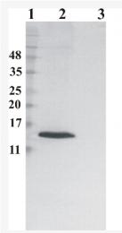 AM33436PU-N - RNASE7