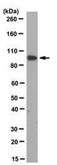 AM39096PU-N - Plakophilin-2