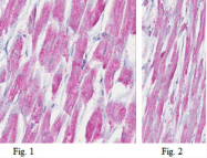AM39105PU-N - Myosin-2 / MYH2