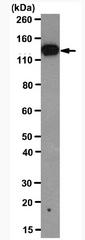 AM39112PU-N - PCDH10