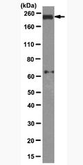AM39123PU-N - BRCA1 / RNF53