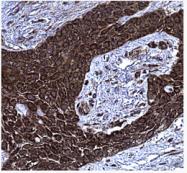 AM39136PU-N - Pleiotrophin / PTN