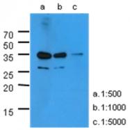 AM50013PU-N - Kallikrein-3 / PSA / KLK3