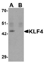 AM50015PU-N - KLF4