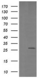 AM50085PU-N - Galectin-3