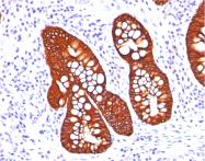 AM50256PU-S - Cytokeratin 19