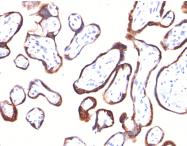 AM50280PU-S - Chorionic Gonadotropin (hCG)