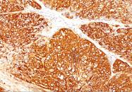 AM50297PU-S - Melanoma Marker (MART-1 + Tyrosinase + gp100)