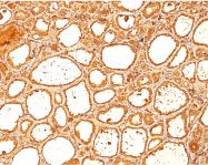 AM50315PU-S - Thyroglobulin