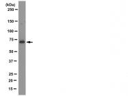 AM50376PU-N - LIMK1
