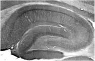 AM50546PU-N - ATP7A