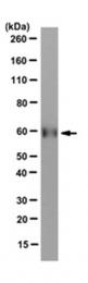AM50578PU-N - PKLR
