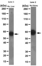 AM50583PU-N - Thioredoxin reductase 2 / TXNRD2
