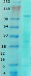 AM60009PU-N - NMDA Receptor 1